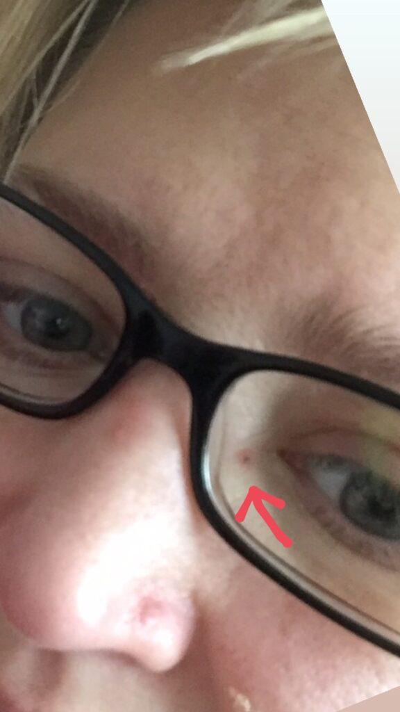 Il segno, tra naso e occhio, lasciato dall'unghia del mio gatto
